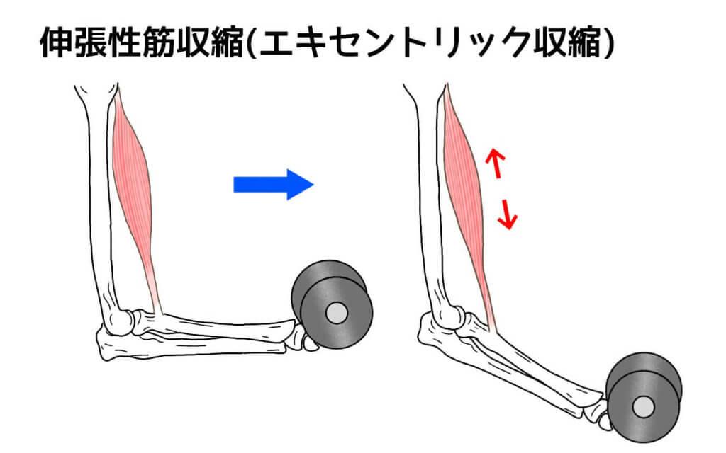 伸張性筋収縮