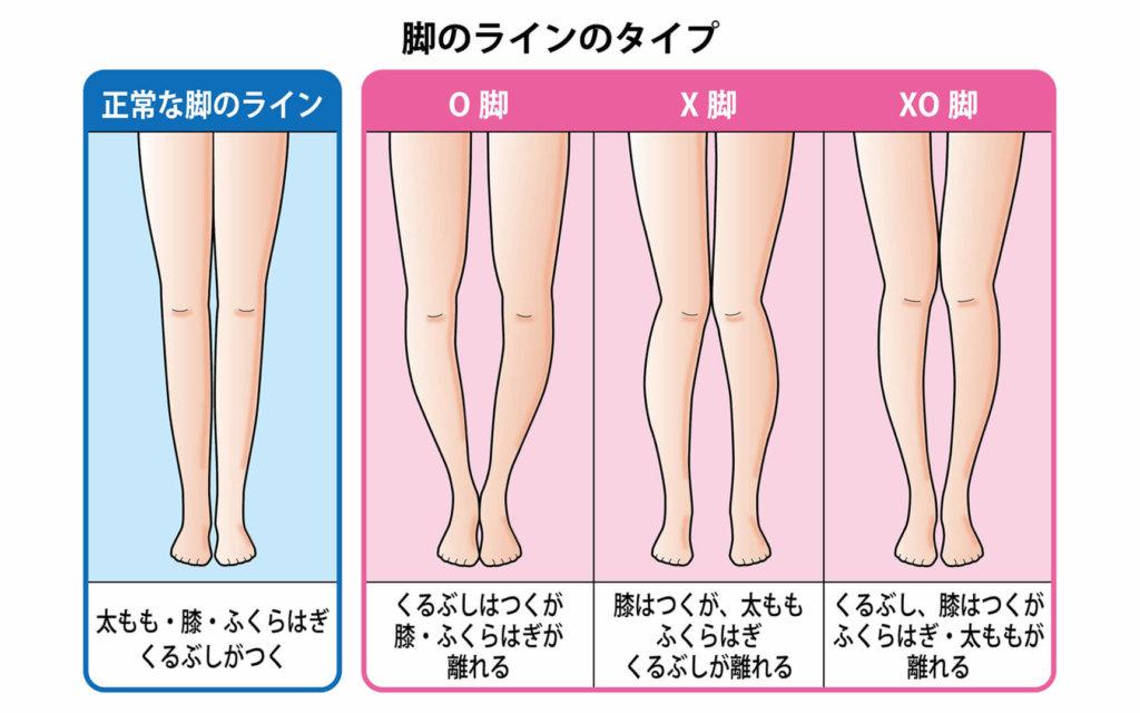 脚のライン(正常、O脚、X脚、XO脚)