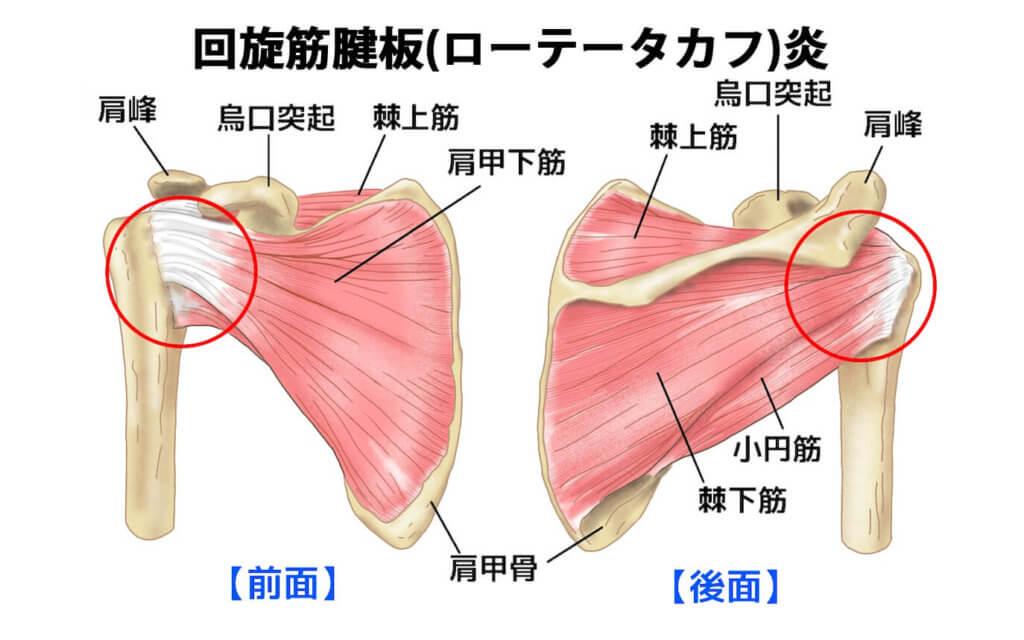 回旋筋腱板(ローテーターカフ)炎