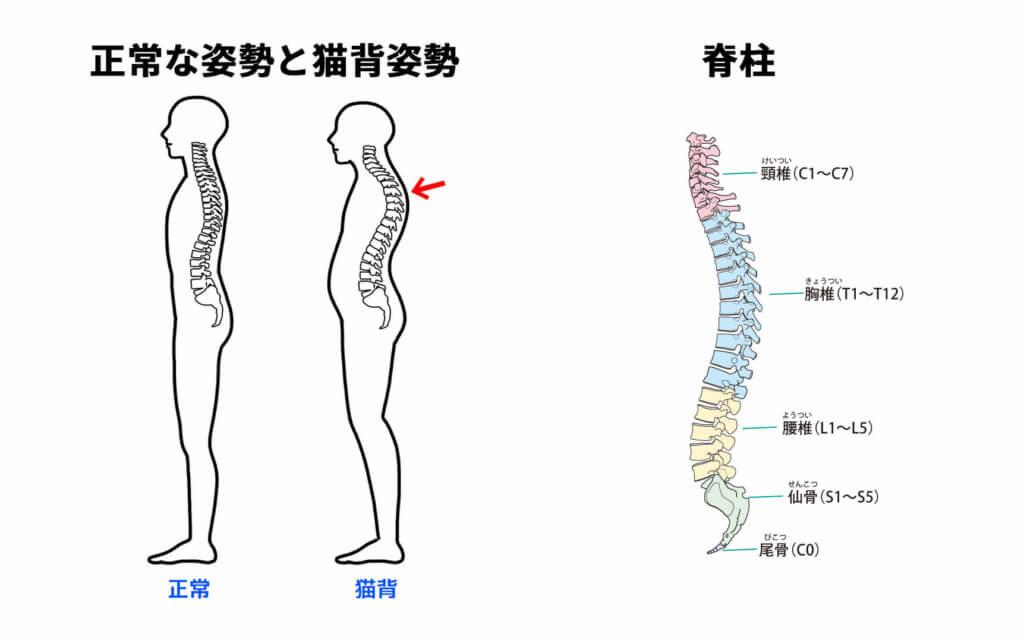 猫背姿勢と脊柱