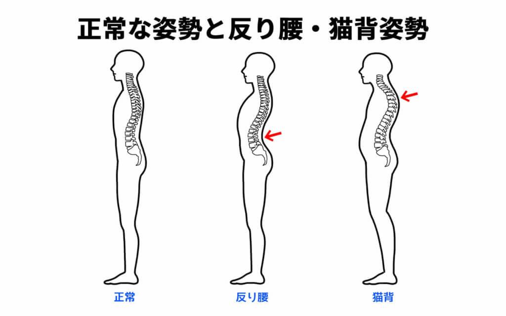 正常な姿勢と反り腰姿勢と猫背姿勢
