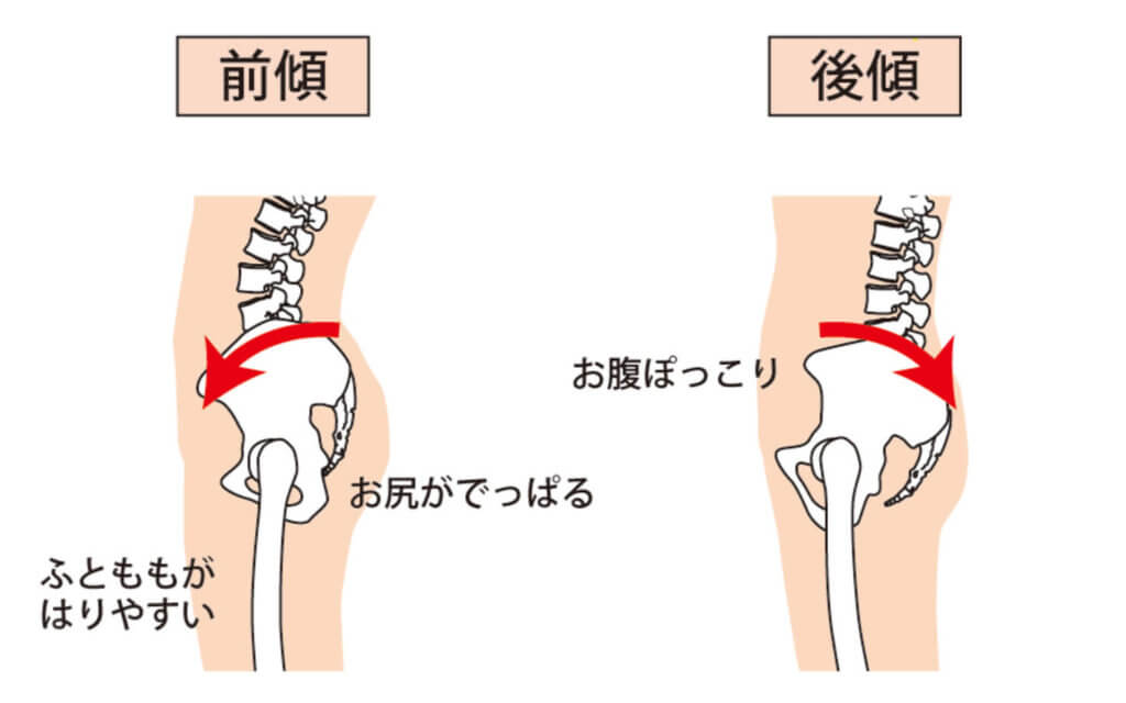 骨盤の傾きのセルフチェック